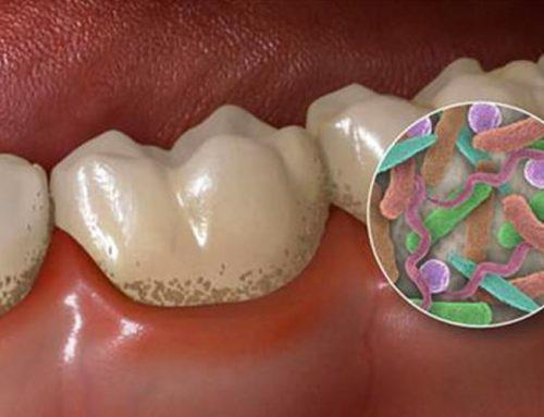 """""""Peri-implant microbiota. Titanium and zirconia"""" Lecture by Dr. Simon Tordjman"""
