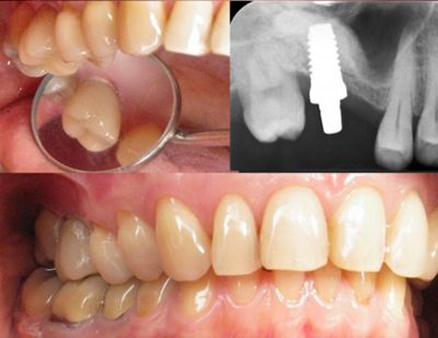 Remplacement d'une molaire supérieure par Dr Stephanie Gouiran.