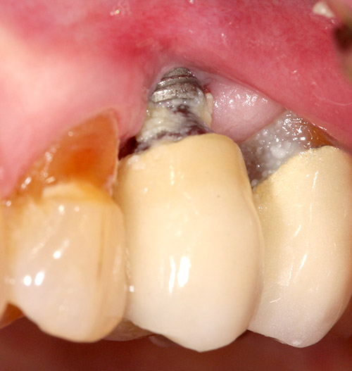 Benefits of Zirconia ceramic in the prevention of peri-implantitis