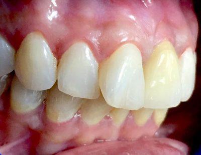 Mise en place immédiate dans la zone esthétique maxillaire par Dr Saurabh Gupta, EACim
