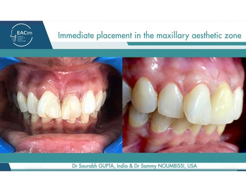 Immediate placement in the maxillary aesthetic zone by Dr Saurabh Gupta