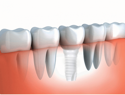 Osseointegration of ceramic implants