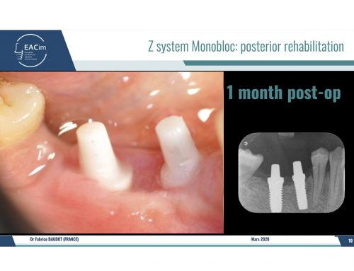 "Clinical Case ""Posterior rehabilitation"" with Z5m monobloc Implant system"" by Dr. F. Baudot"