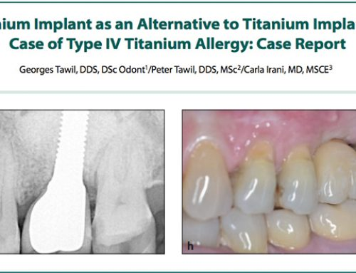 Zirconium Implant as an Alternative to Titanium Implant in a Case of Type IV Titanium Allergy: Case Report