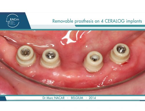 Removable prosthesis on 4 CERALOG implants by Dr Marc Nacar