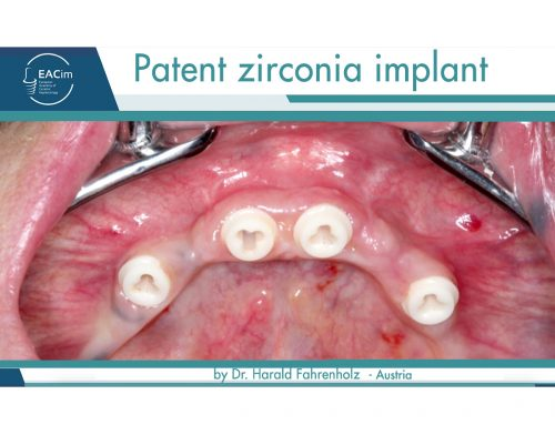 "Clinical Case report ""Patent zirconia implant"" by Dr. Harald Fahrenholz"